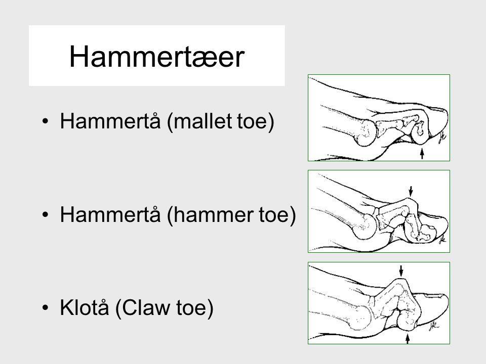 Hammertæer Hammertå (mallet toe) Hammertå (hammer toe)