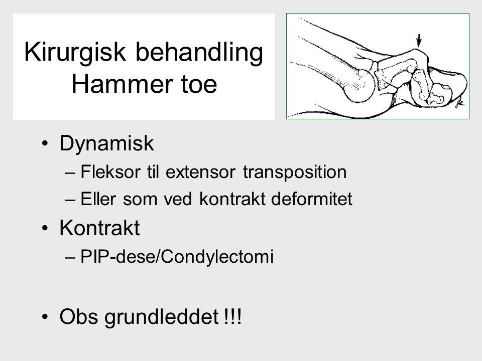 Kirurgisk behandling Hammer toe