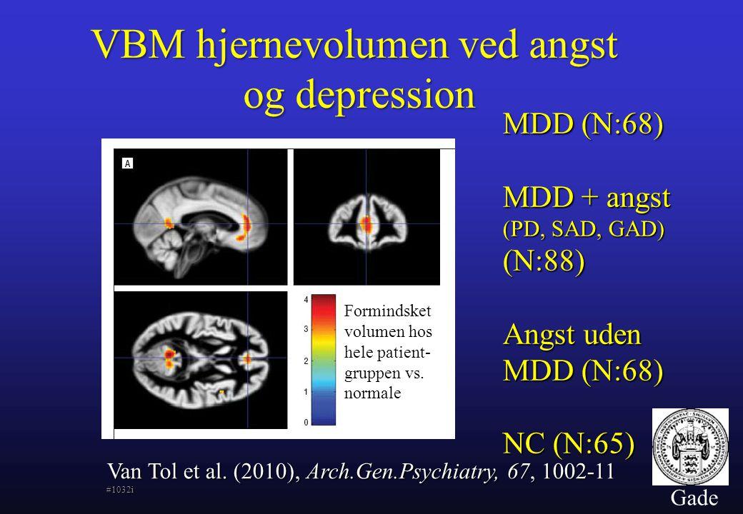 VBM hjernevolumen ved angst og depression