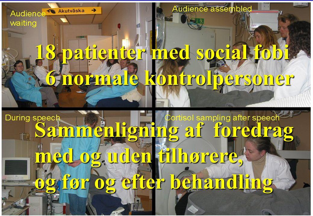 18 patienter med social fobi 6 normale kontrolpersoner