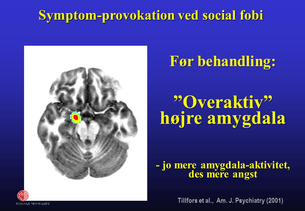 Overaktiv højre amygdala