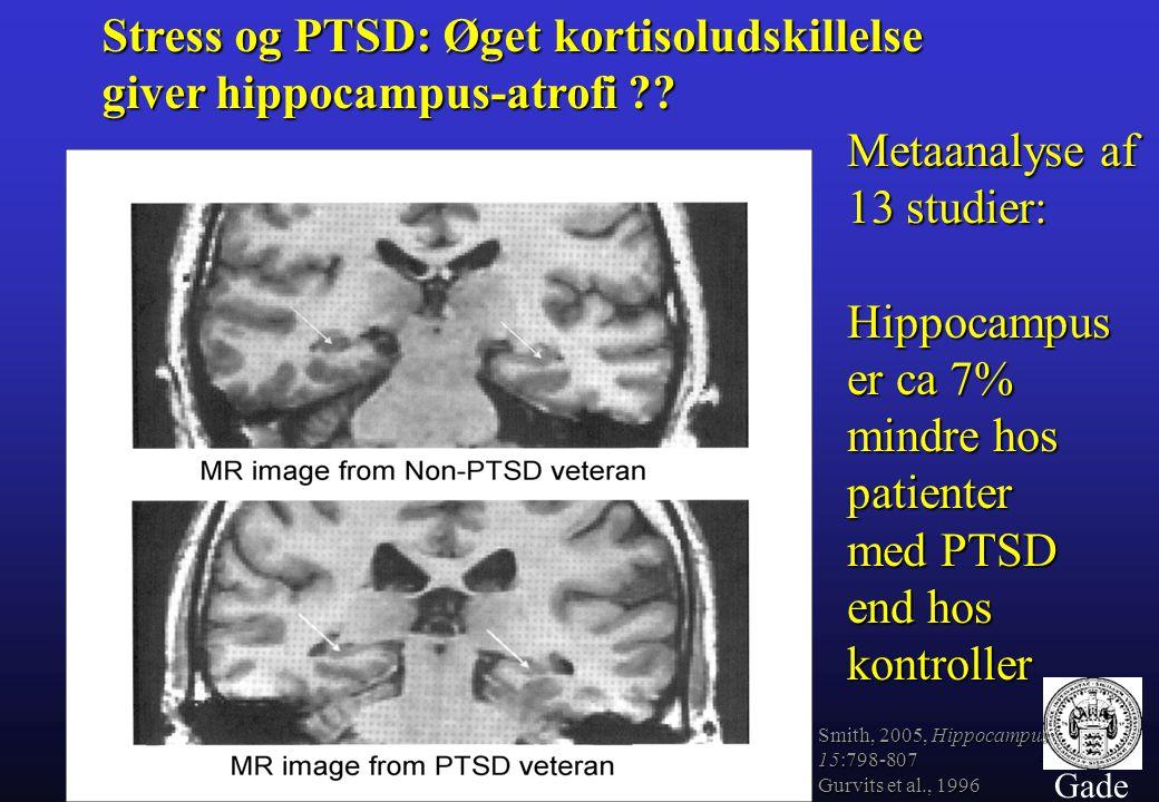 Stress og PTSD: Øget kortisoludskillelse giver hippocampus-atrofi