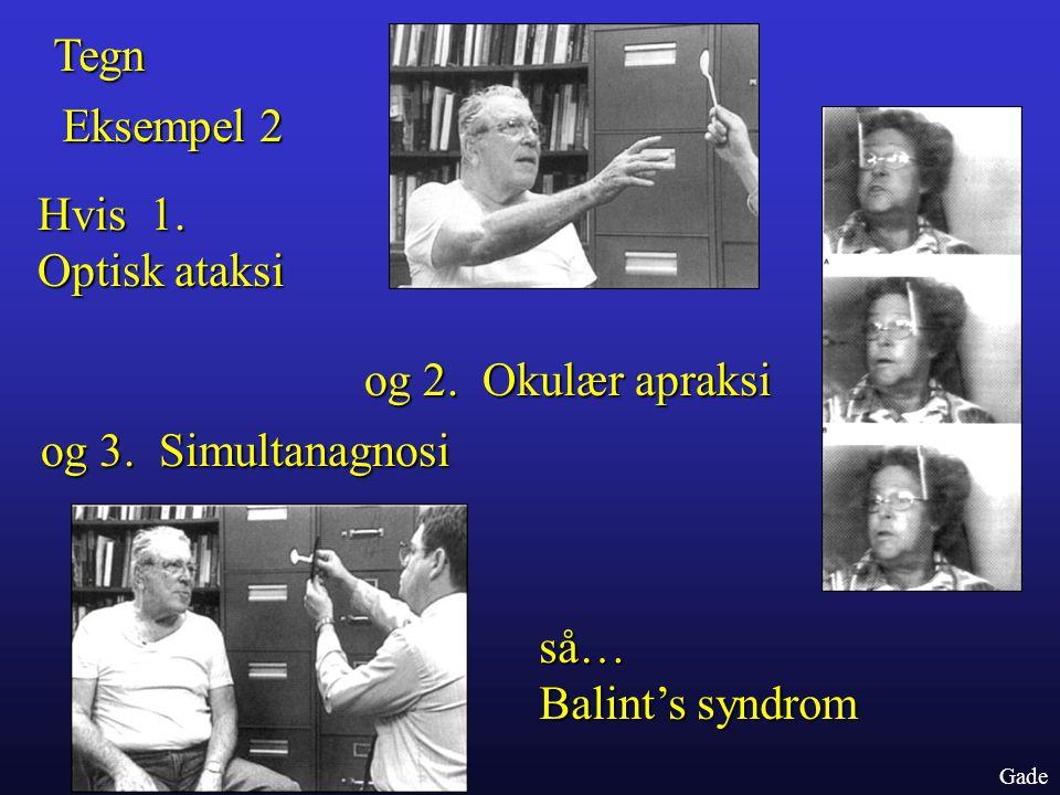 Tegn Eksempel 2 Hvis 1. Optisk ataksi og 2. Okulær apraksi