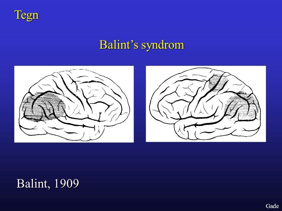 Tegn Balint's syndrom Balint, 1909 Gade