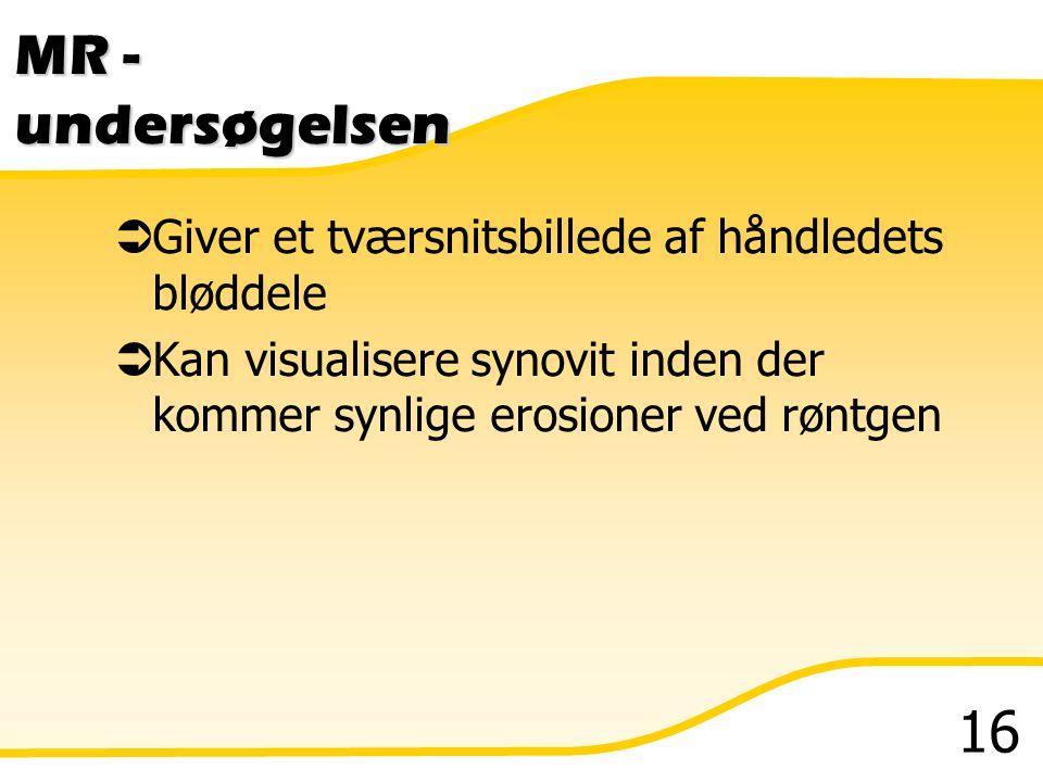 MR - undersøgelsen Giver et tværsnitsbillede af håndledets bløddele