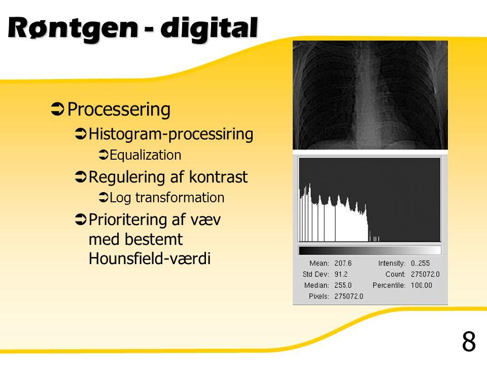 Røntgen - digital Processering Histogram-processiring