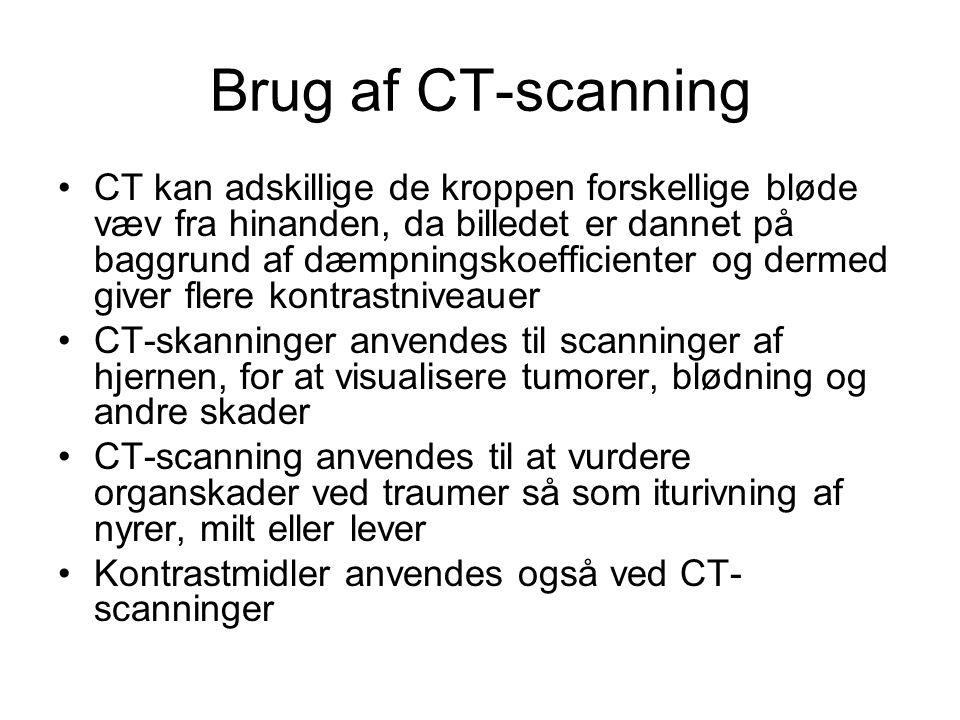 Brug af CT-scanning