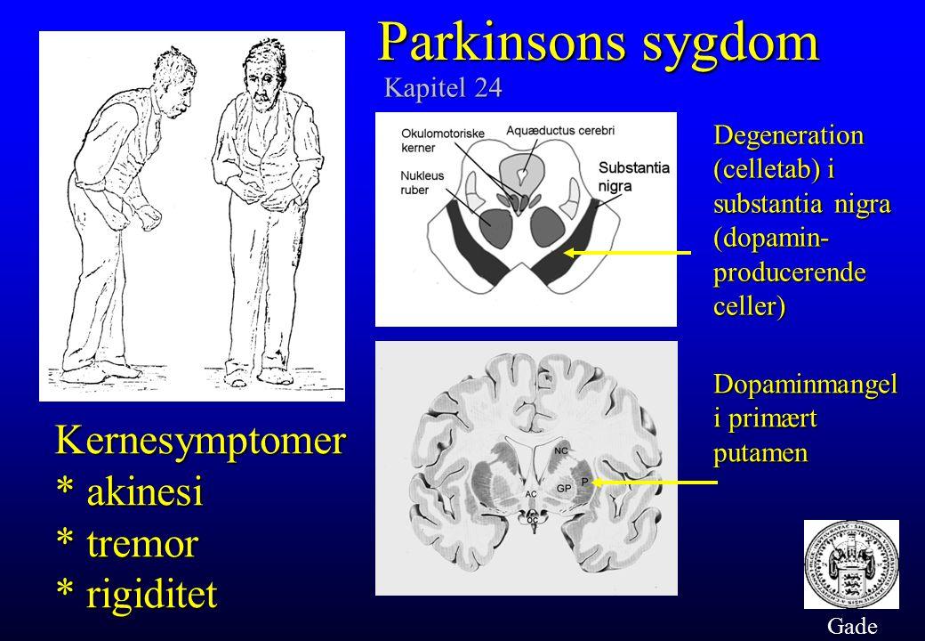 Parkinsons sygdom Kernesymptomer * akinesi * tremor * rigiditet