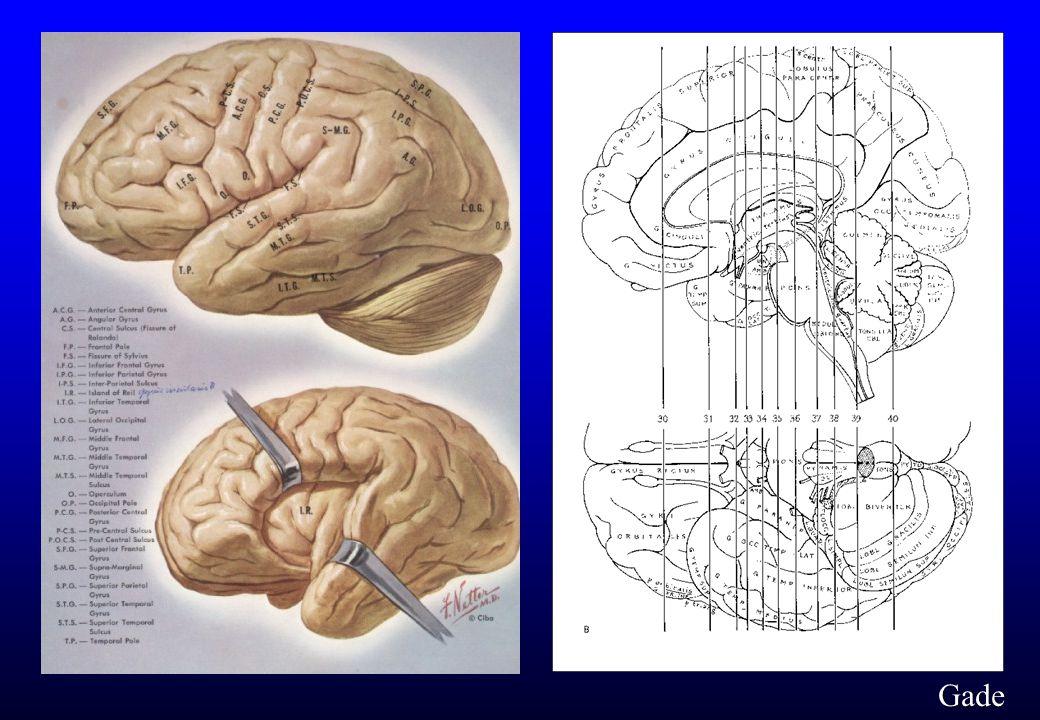 Hjernen i kronesnit Gade