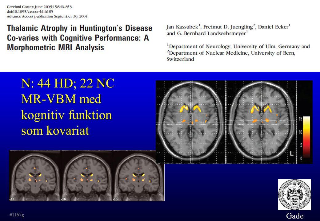 N: 44 HD; 22 NC MR-VBM med kognitiv funktion som kovariat