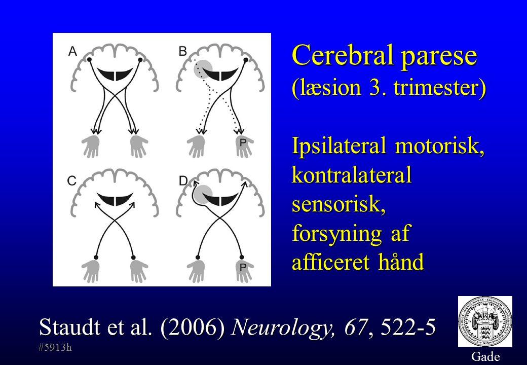 Cerebral parese (læsion 3. trimester)