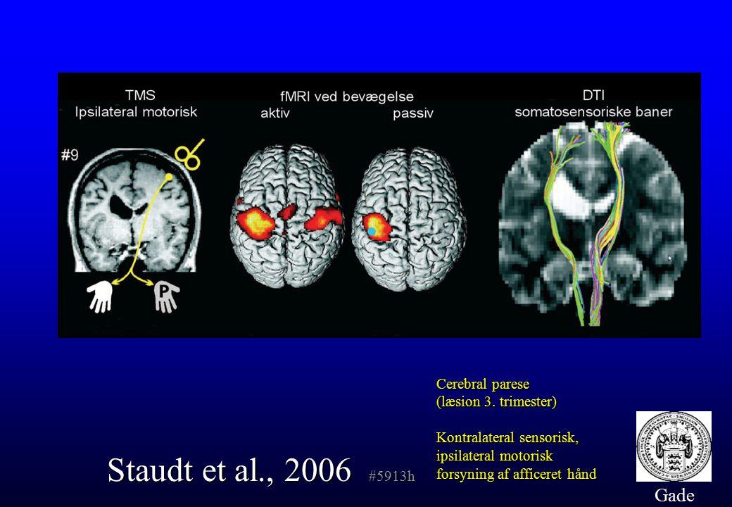 Staudt et al., 2006 #5913h Gade Cerebral parese (læsion 3. trimester)
