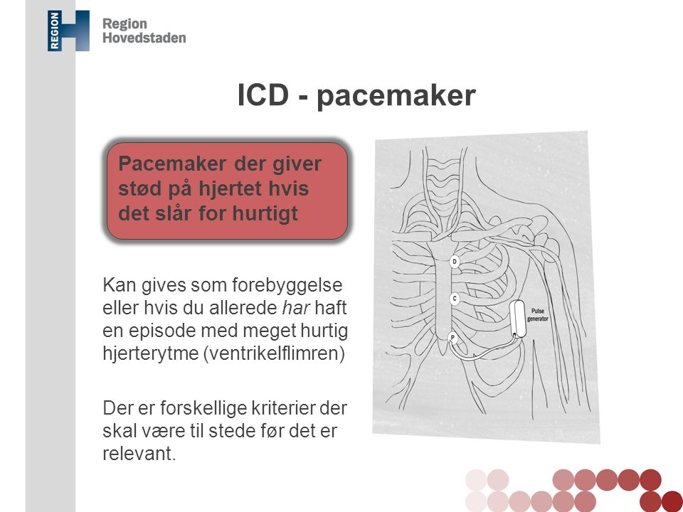 ICD - pacemaker