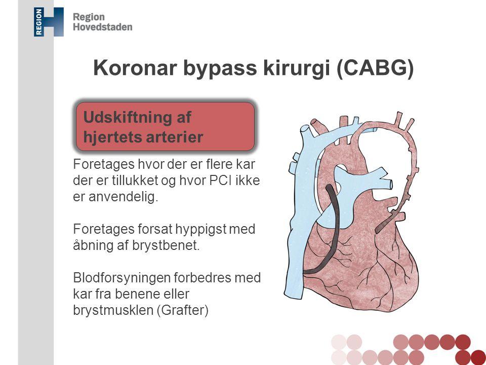 Koronar bypass kirurgi (CABG)