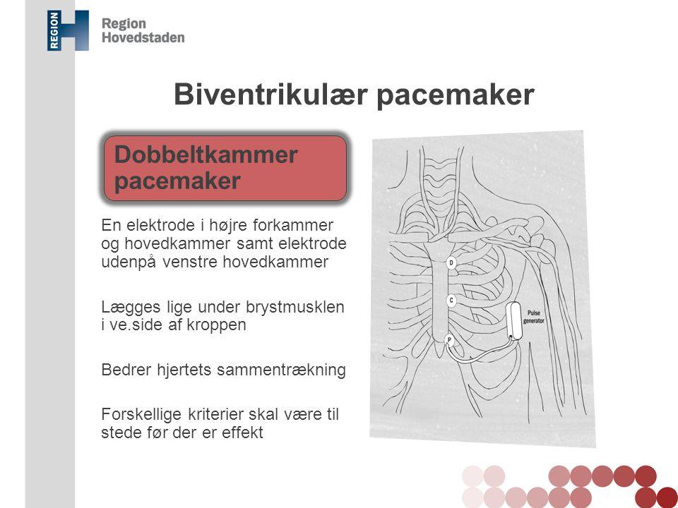 Biventrikulær pacemaker