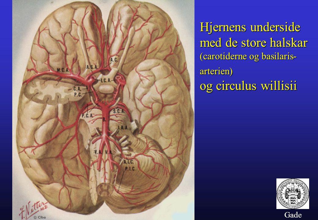 Hjernens underside med de store halskar og circulus willisii