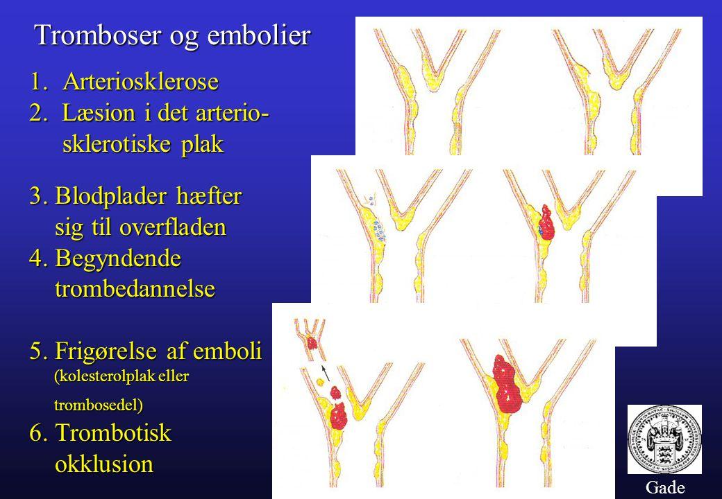 Tromboser og embolier Arteriosklerose