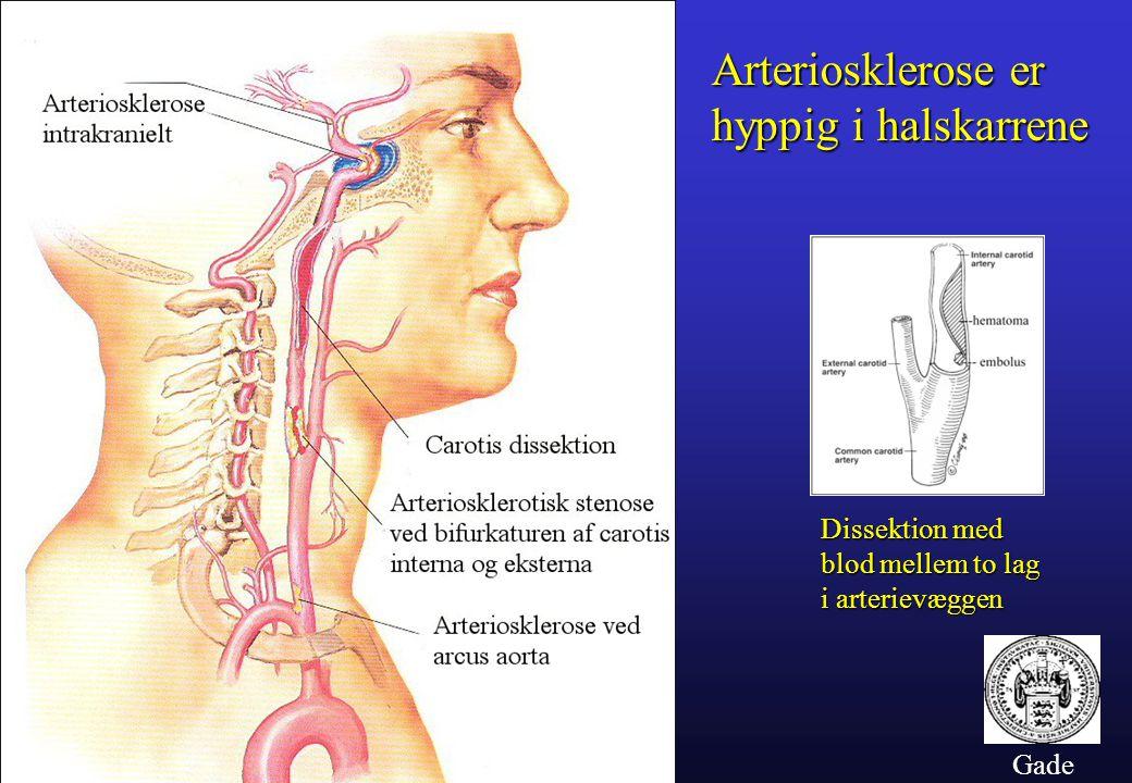 Arteriosklerose er hyppig i halskarrene