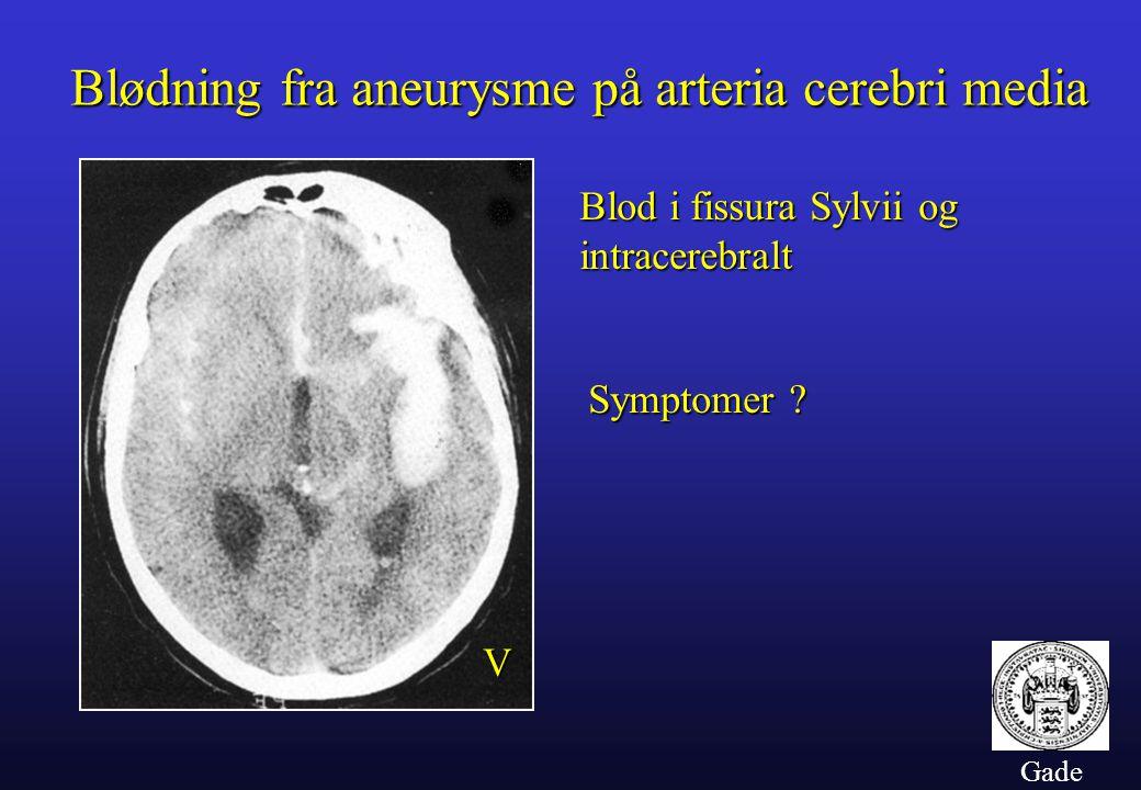 Blødning fra aneurysme på arteria cerebri media