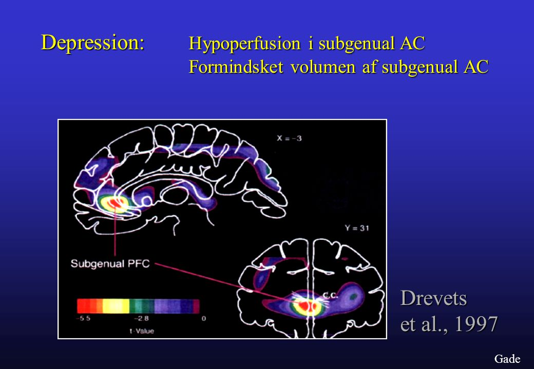 Depression: Hypoperfusion i subgenual AC