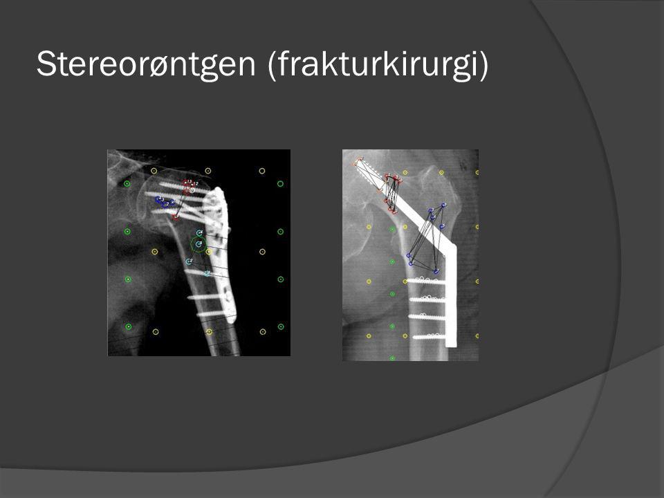 Stereorøntgen (frakturkirurgi)