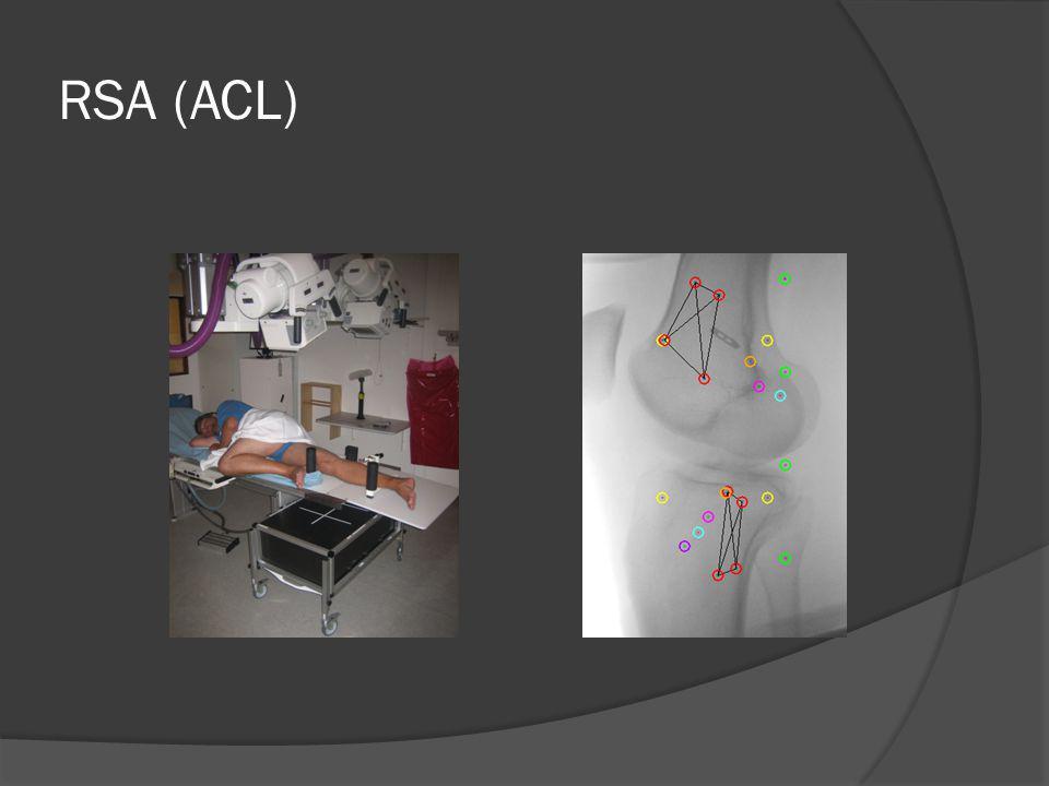 RSA (ACL)