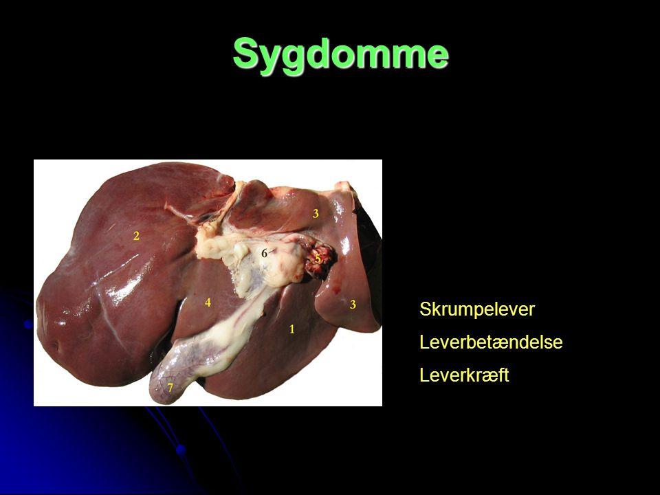 Sygdomme Skrumpelever Leverbetændelse Leverkræft