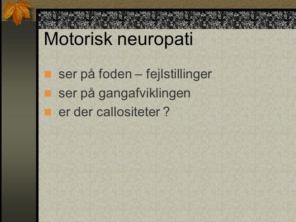 Motorisk neuropati ser på foden – fejlstillinger
