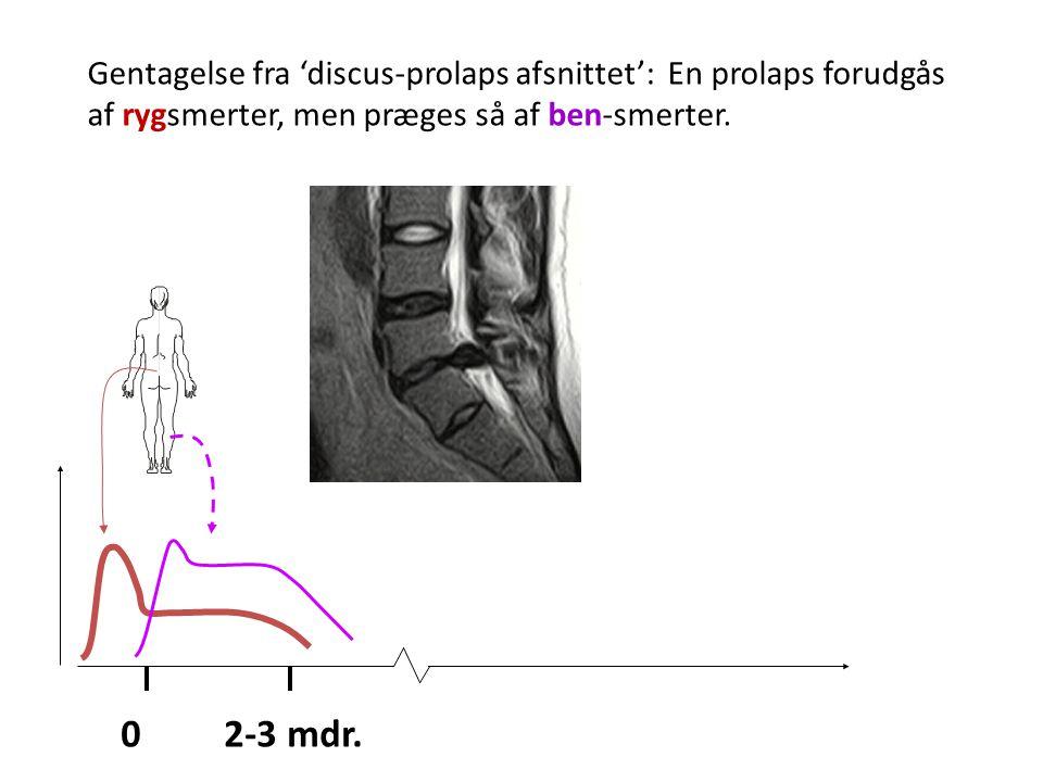 Gentagelse fra 'discus-prolaps afsnittet': En prolaps forudgås af rygsmerter, men præges så af ben-smerter.
