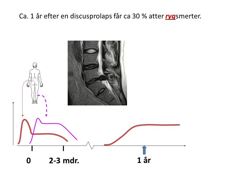 Ca. 1 år efter en discusprolaps får ca 30 % atter rygsmerter.