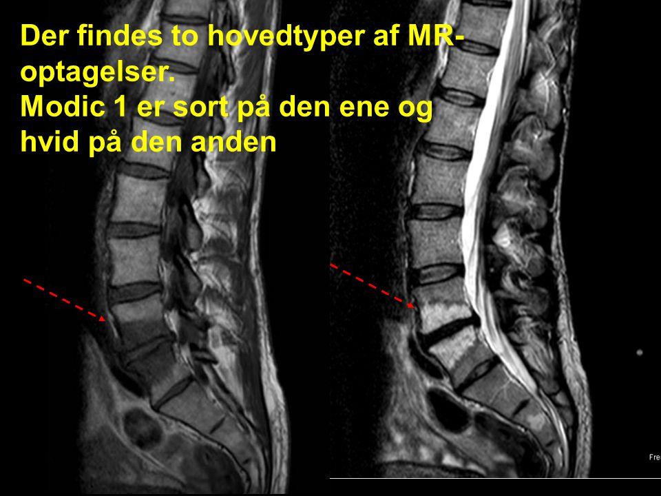 Der findes to hovedtyper af MR-optagelser.