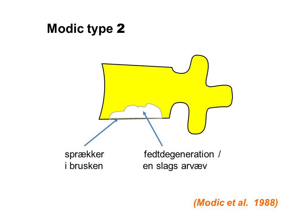 Modic type 2 sprækker fedtdegeneration / i brusken en slags arvæv