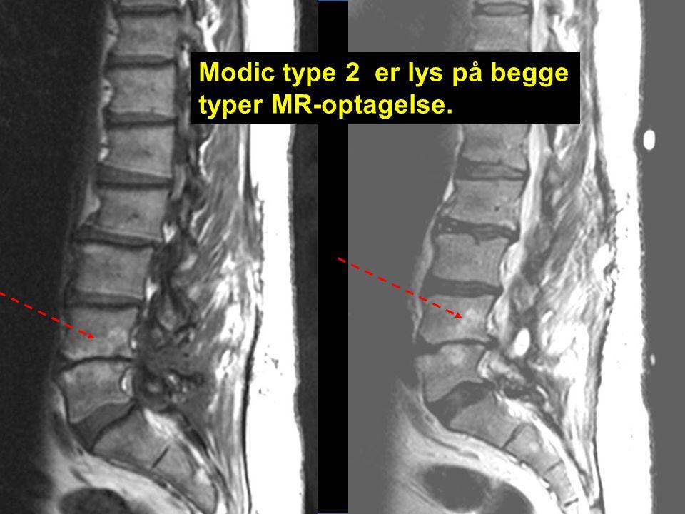 Modic type 2 er lys på begge typer MR-optagelse.