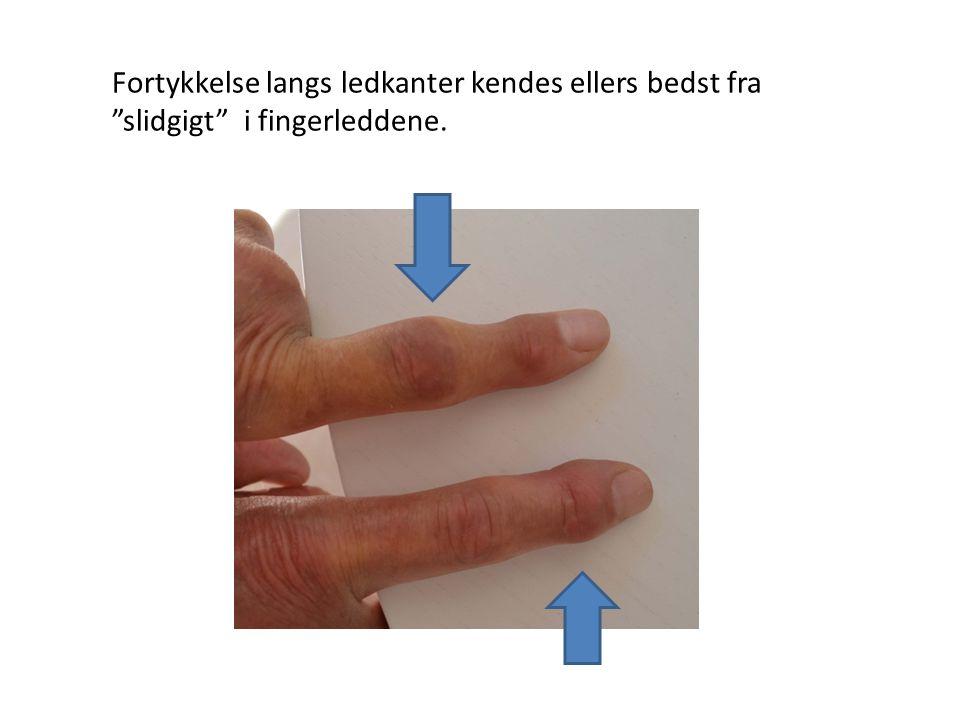 Fortykkelse langs ledkanter kendes ellers bedst fra slidgigt i fingerleddene.