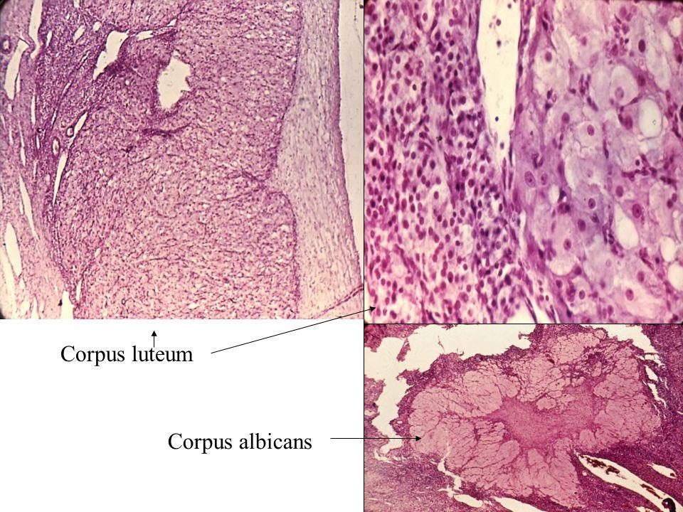 Corpus luteum Corpus albicans