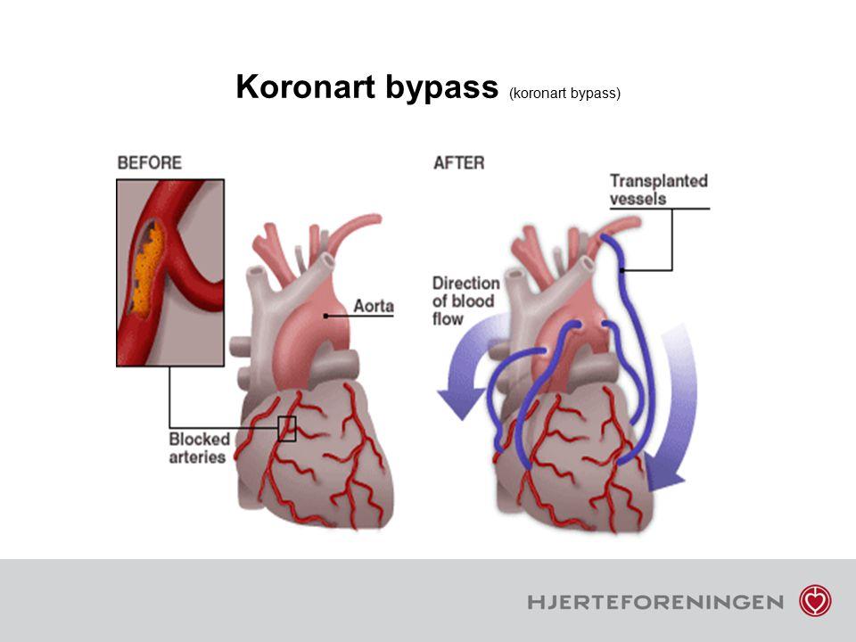 Koronart bypass (koronart bypass)