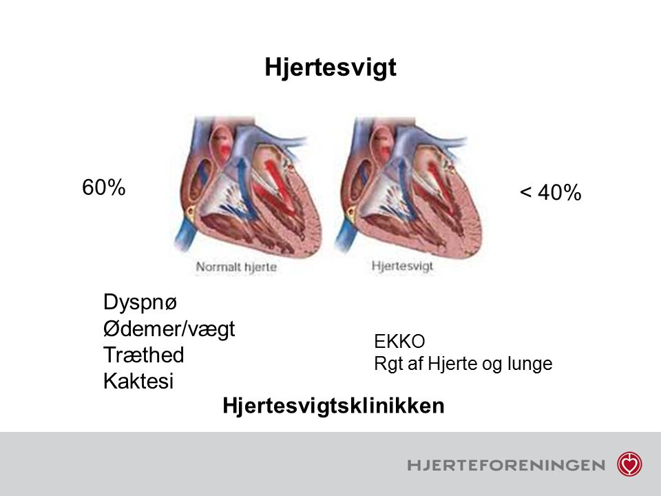 Hjertesvigt 60% < 40% Dyspnø Ødemer/vægt Træthed Kaktesi