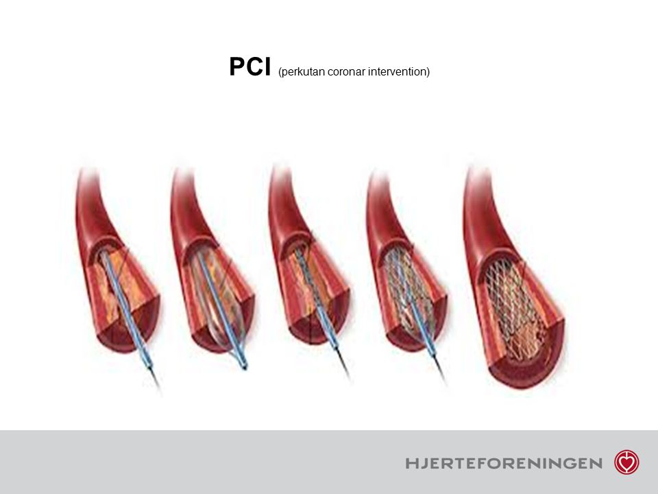 PCI (perkutan coronar intervention)