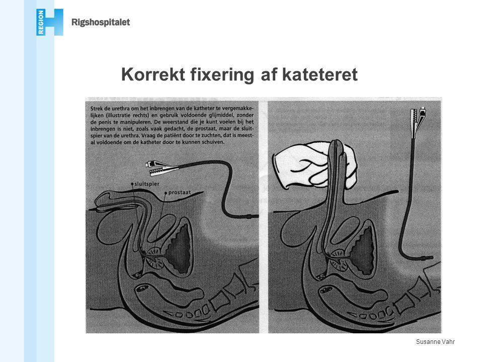 Korrekt fixering af kateteret