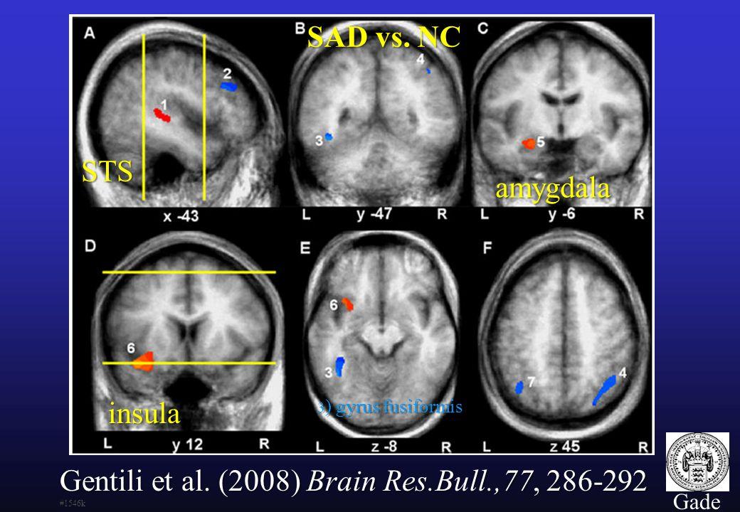 Gentili et al. (2008) Brain Res.Bull.,77, 286-292 #1546k