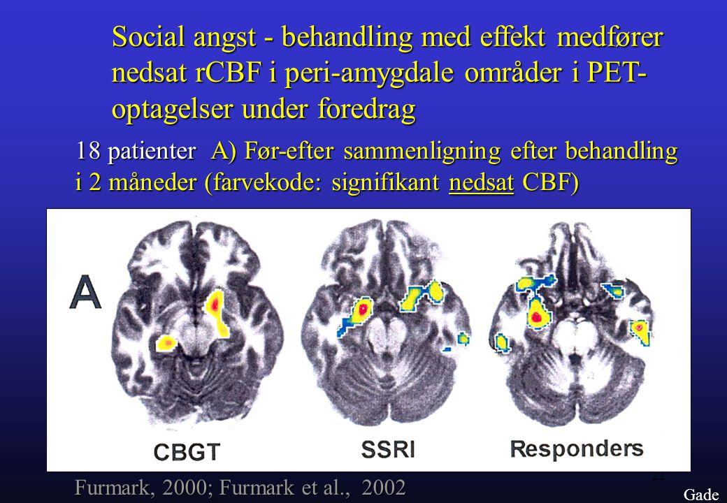 Social angst - behandling med effekt medfører nedsat rCBF i peri-amygdale områder i PET- optagelser under foredrag