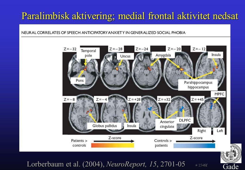 Paralimbisk aktivering; medial frontal aktivitet nedsat