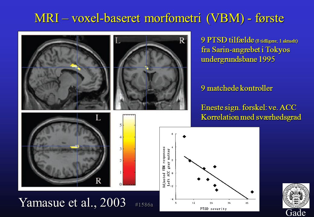 MRI – voxel-baseret morfometri (VBM) - første