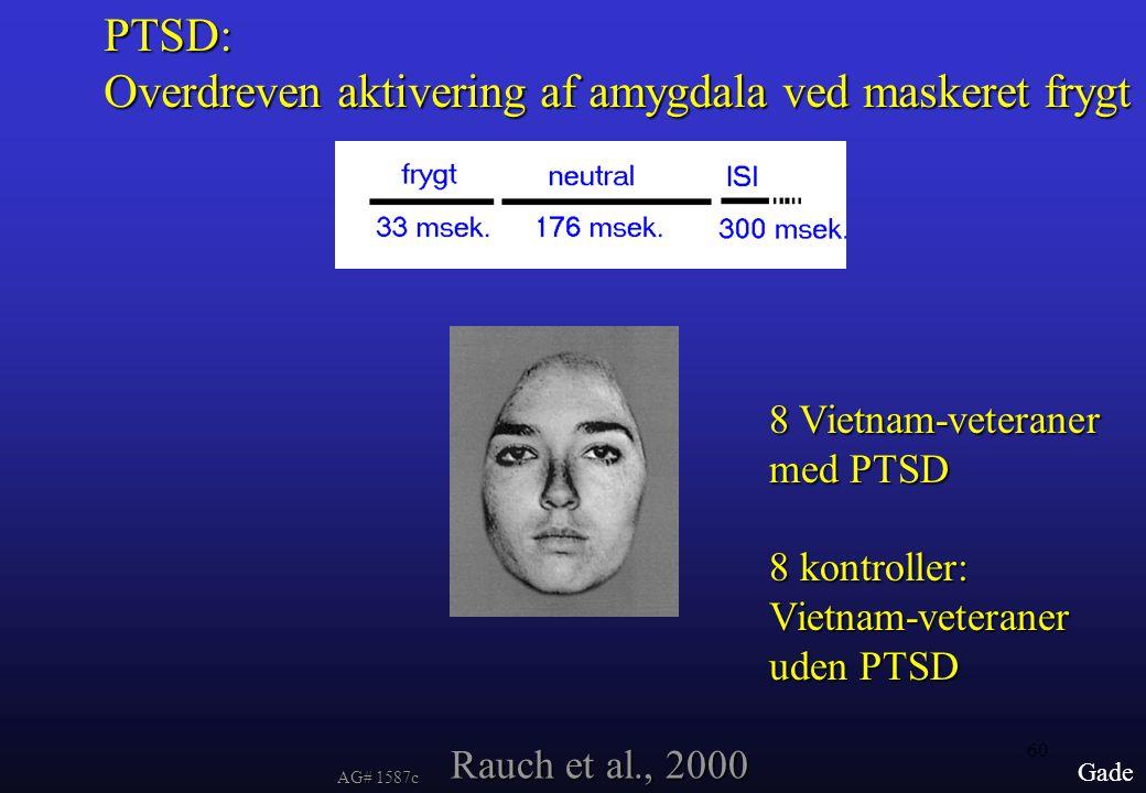 Overdreven aktivering af amygdala ved maskeret frygt