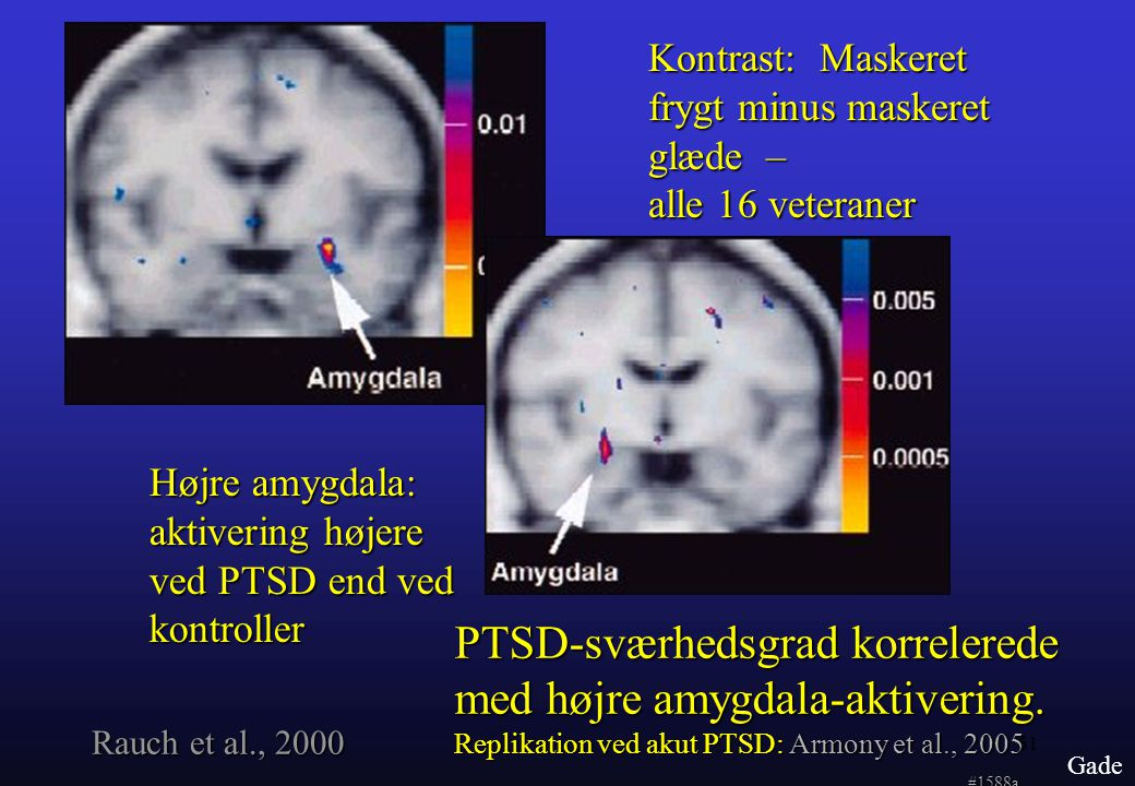 PTSD-sværhedsgrad korrelerede med højre amygdala-aktivering.