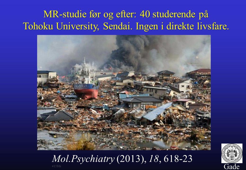 MR-studie før og efter: 40 studerende på Tohoku University, Sendai