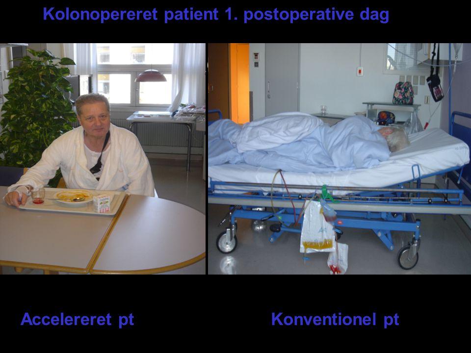 2 patientbilleder Kolonopereret patient 1. postoperative dag