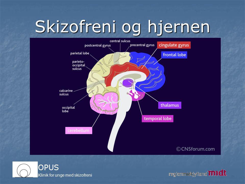 Skizofreni og hjernen Skizofreni er en sygdom der berører hjernen
