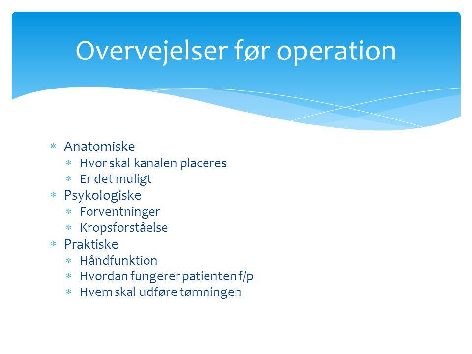 Overvejelser før operation