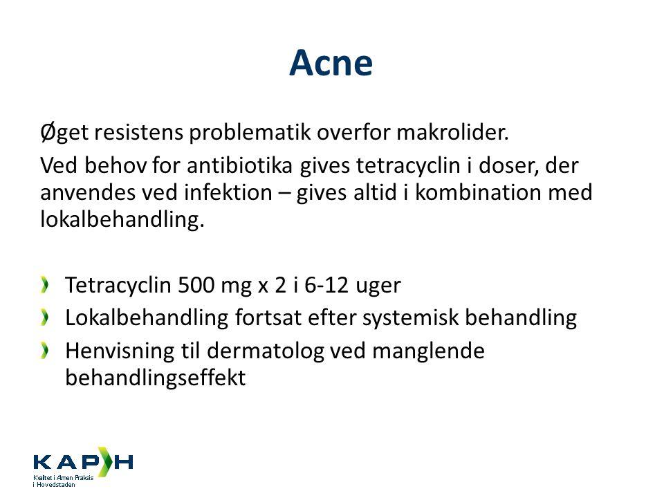 Acne Øget resistens problematik overfor makrolider.